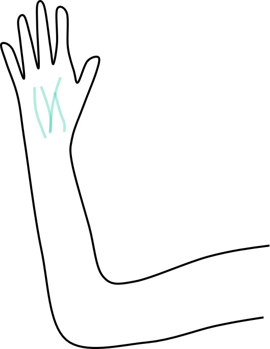 手を挙げた時の静脈
