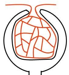 腎小体の断面。内部に糸球体という、毛細血管のかたまりがある。