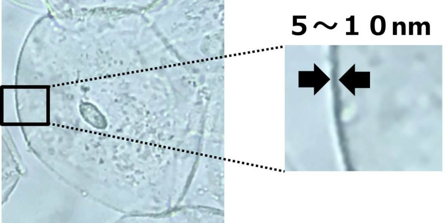 ヒトのほおの細胞の写真で、細胞膜の部分を拡大。幅が5~10nmであることを描いた図。