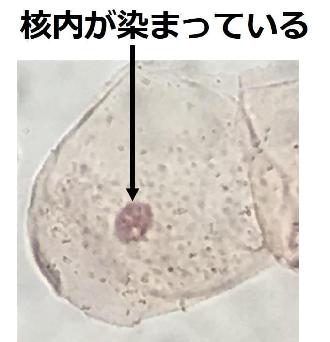 核内だけが、薄い赤紫に染まっている写真。