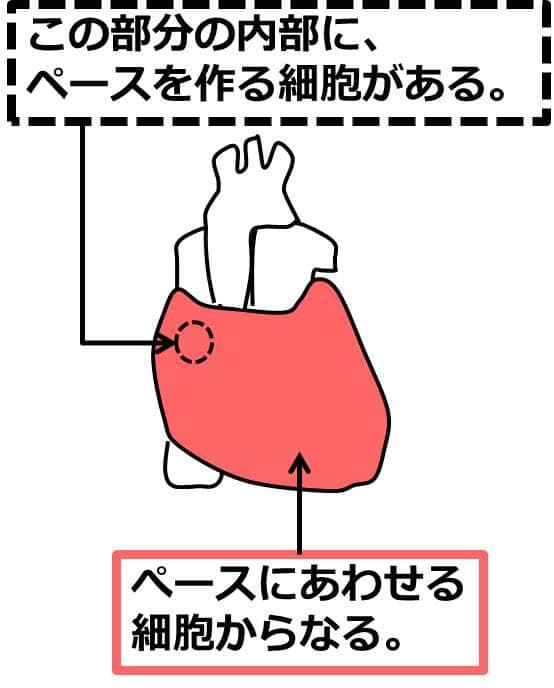 ヒトの心臓の模式図。 心臓を正面から見て、左上の部分内部に、ペースを作る細胞がある。その他は、ペースにあわせる細胞からなる。