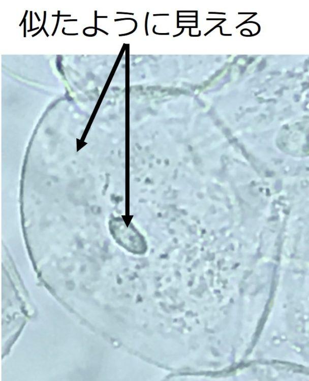 核内と、核外の細胞内とを比べると、見た目はほぼ同じ。無色半透明で、特徴的な構造物は見えない。