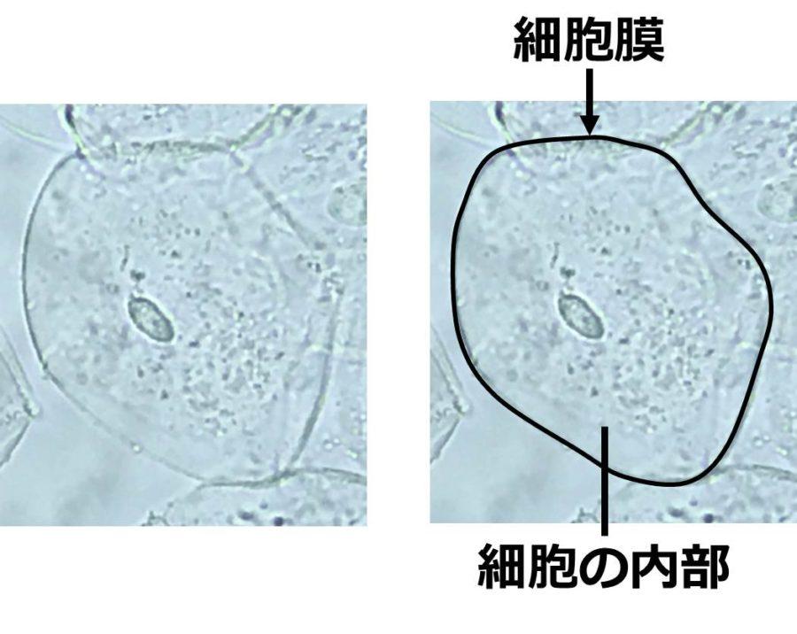 いびつな円形の細胞が写っている。いびつな円の縁取りは、細胞膜である。細胞の内部に、粒状のものがある様子が見える。