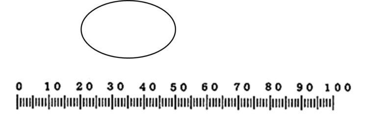 楕円形の観察物が接眼ミクロメータの目盛りよりもずっと上側に描いてある。