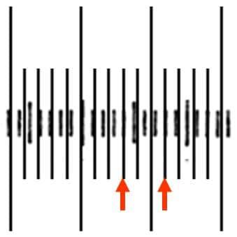 対物ミクロメータ3目盛と接眼ミクロメータの4目盛が重なっている。